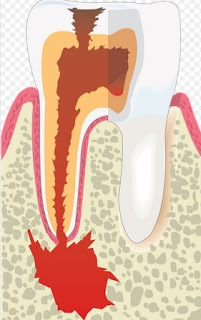 Causes Of Cavities That Are Rarely Alerted