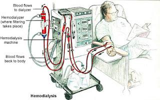 Cuci darah pada penderita ginjal dan solusi alternatifnya