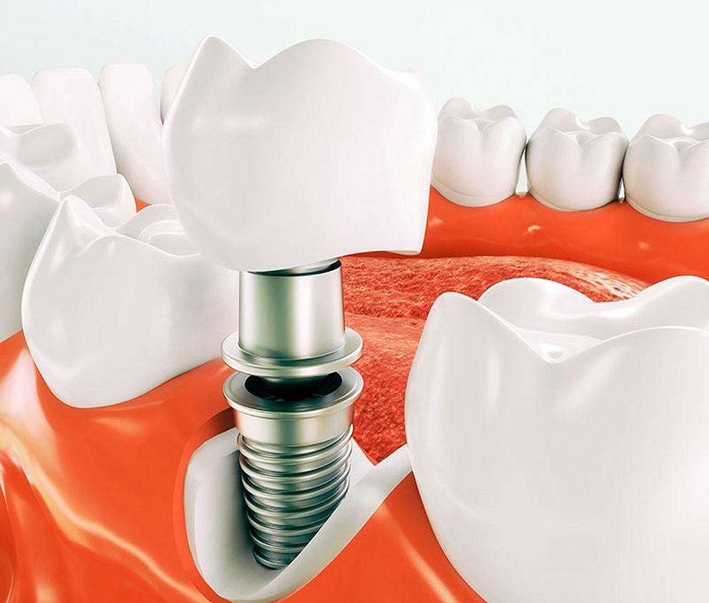 Implante D94entario