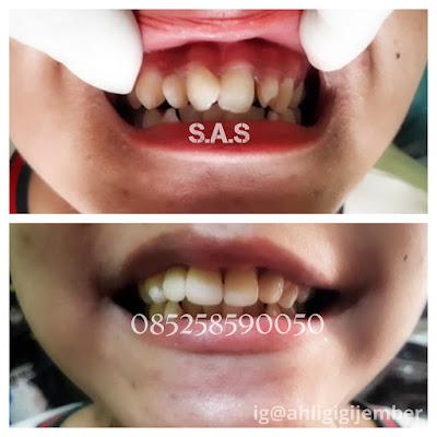 Foto gigi depan berantakan dan di veneer gigi rapi dengan veneer