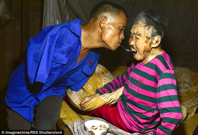 Devoted Son Who Lost Both Arms Spoon-Feeds Sick Mother Using His TEETH