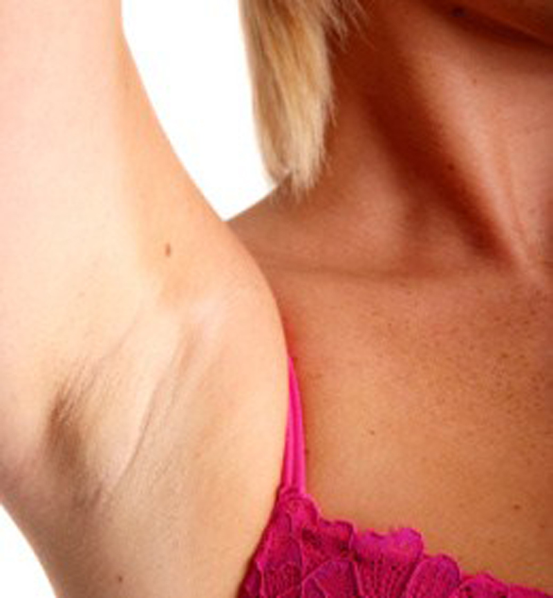 All You Need To Know About Underarm Lump