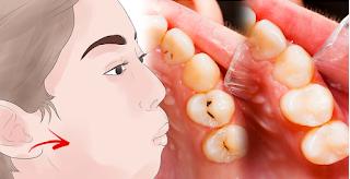 Auf Wiedersehen, Mundgeruch, Plaque, Zahnstein und schädliche Bakterien im Mund mit nur einem Inhaltsstoff