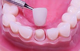 Tổng hợp các cách làm răng hết hô vẩu