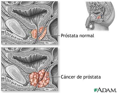 impotencia de los efectos secundarios de la radiación del cáncer de próstata