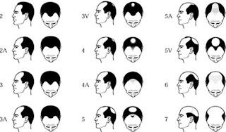 انواع تساقط الشعر لدى الرجال , انواع تساقط الشعر عند النساء