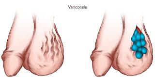 Obat Varikokel Pada Testis varicocele