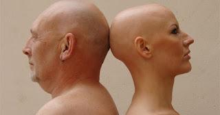 Cara Alami Menumbuhkan Rambut Kepala Botak Plontos