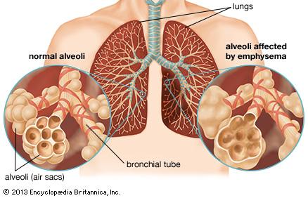 Obat Di Apotik Untuk Penyakit Tbc