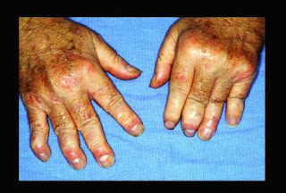 teatment of Psoriatic Arthritis
