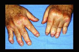 Psoriatic Arthritis & Treatment