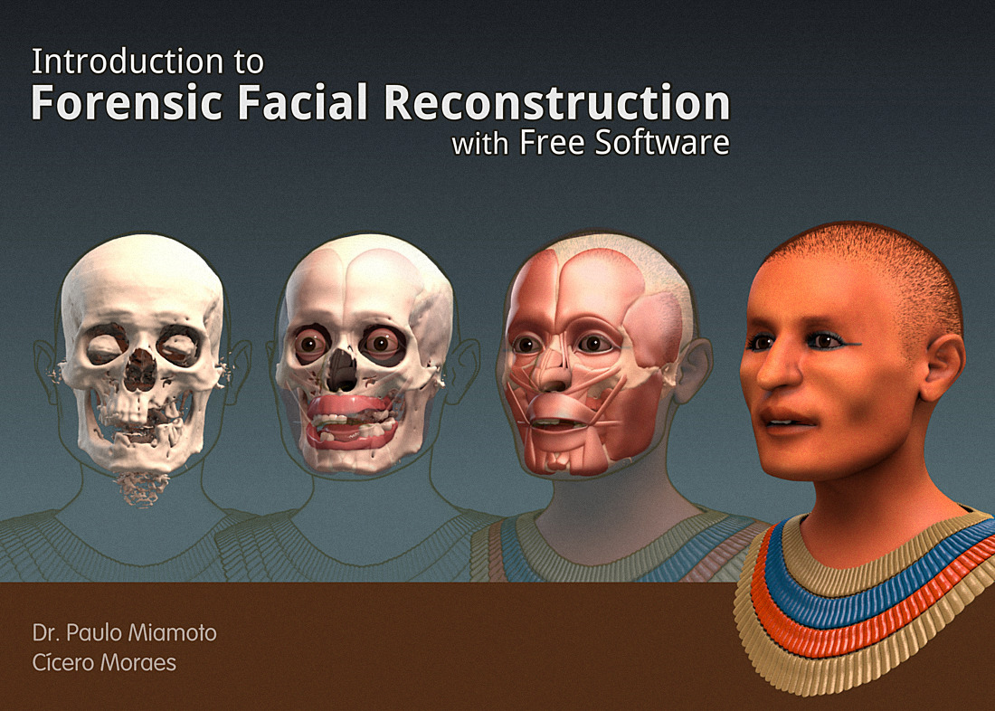 3d facial skull reconstruction