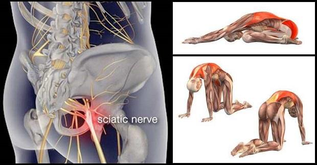 Piriformis Stretches, Sciatica, Back Pain