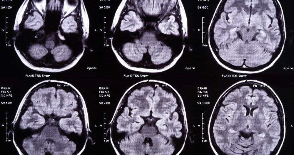 clermont radiologys medical imaging blog can brain