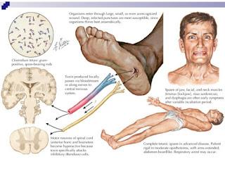 Pengobatan Untuk Menyembuhkan Infeksi Tetanus Secara Alami, Efektif Dan Cepat