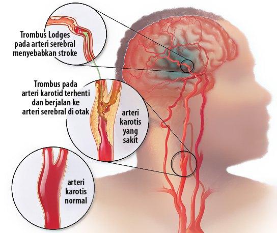 Asuhan Keperawatan (Askep) Cerebro Vascular Accident (CVA) Infark Trombosis
