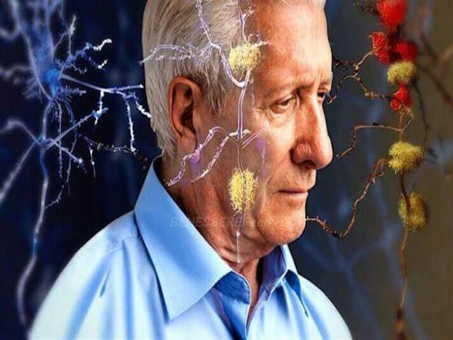 Il nuovo trattamento per l'Alzheimer ripristina completamente la funzione di memoria