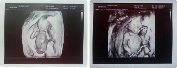 16 Haftalık Gebelik Ultrason Görüntüleri
