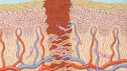 Tại sao các vết thương thường ngứa khi chúng đang trong quá trình lành lại