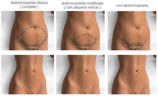 Cirurgia para retirada de excesso de pele na barriga