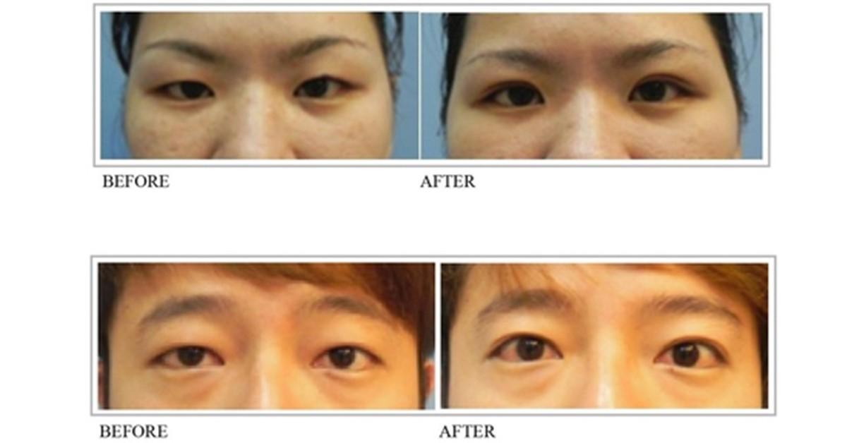 整形外科 李兆翔醫師: 雙眼皮手術 – 雙眼明亮加倍 自然迷人