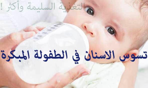 تسوس الاسنان في الطفولة المبكرة