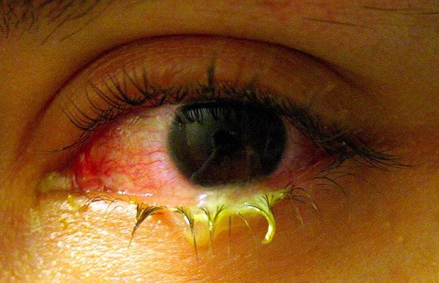 आँख दुखना [ कन्जंक्टिवाइटिस - Conjunctivitis ] क्या होता है ? यह हमारे आँखों को किस प्रकार हानि पहुचता है ? और इससे किस प्रकार बचा जा सकता है ? Eye ache [conjunctivitis - conjunctivitis] What happens? How does it harm our eyes? And how can this be avoided?