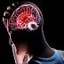 Síntomas que alertan de un derrame cerebral antes de que pase, ¡tienes que leerlo!