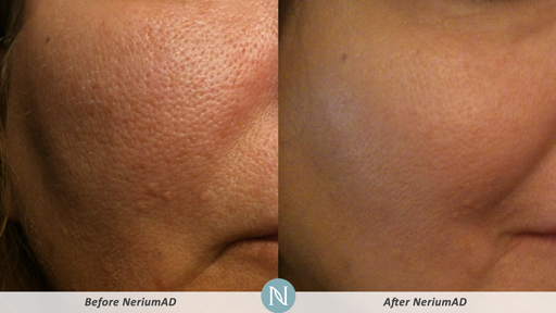 Neriumad Free Samples Ways To Make Your Pores Look Smaller