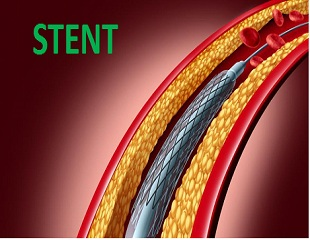 stent price, slashes