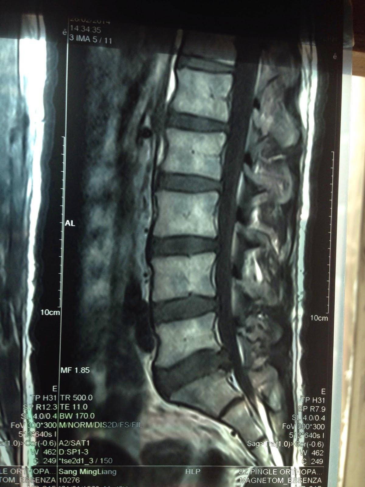 AKA博田法3回目/回復と効果 | 腰椎椎間板ヘルニアと坐骨神経痛の ...