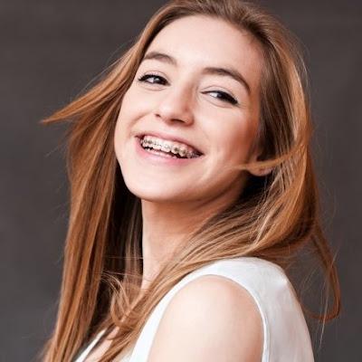Tujuh Hal Yang Wajib Kalian Ketahui Sebelum Pasang Behel Gigi