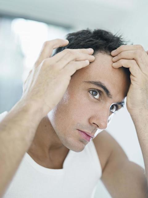 7 razones por las que se cae el cabello