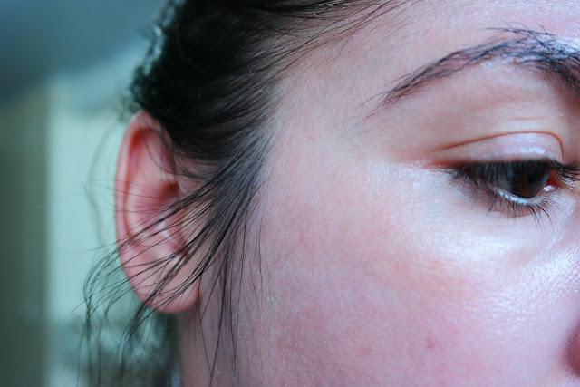 melasma, tratamento, manchas de pele, ácidos, pausa de ácidos, clareamento de pele, pele mais saudável, vitamina C, ácido mandélico
