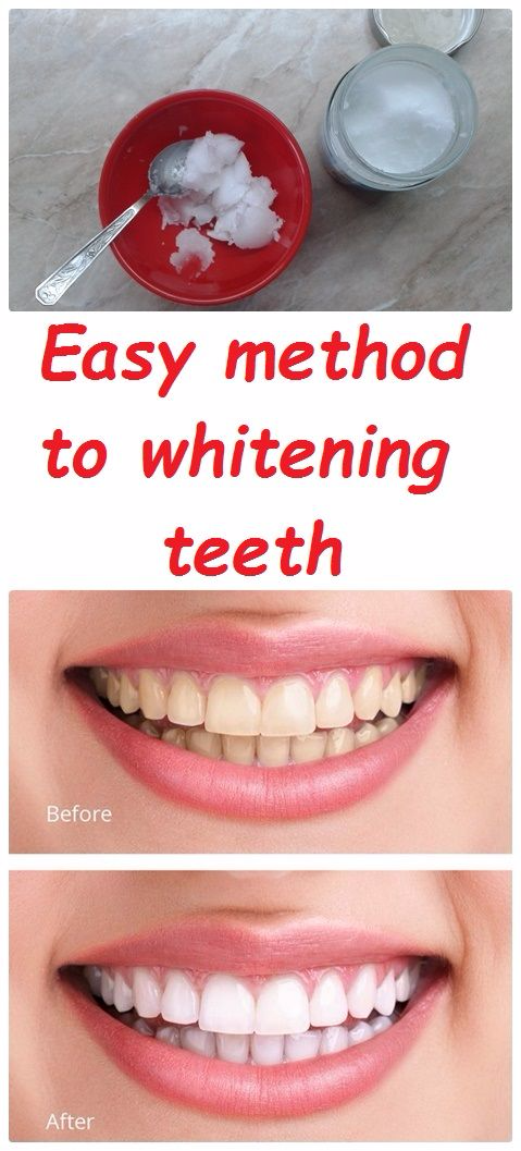 Easy method to whitening teeth