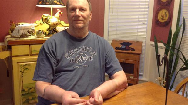 Hombre dice arrepentirse de haber recibido trasplante de manos