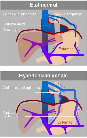 hypertension portale varices oesophagiennes infirmier