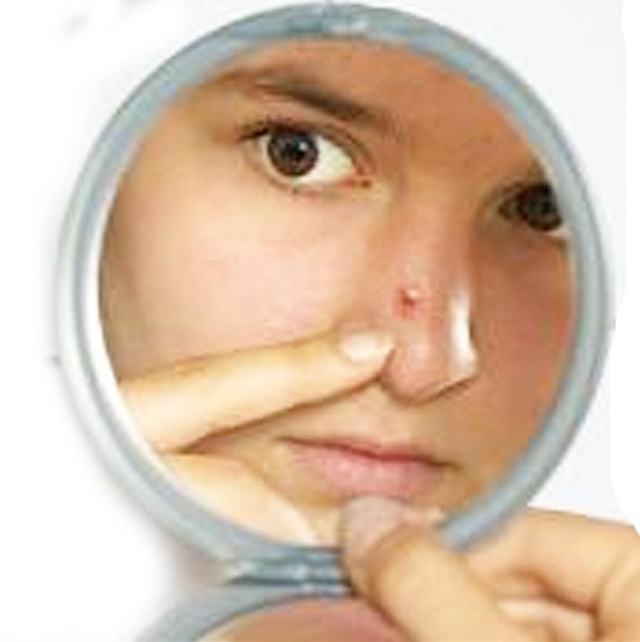 15 Cara Menghilangkan Jerawat Di wajah Secara Cepat Dan Alami