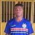 Ex-atleta da base do Bahia sofre ataque cardíaco e morre em campo