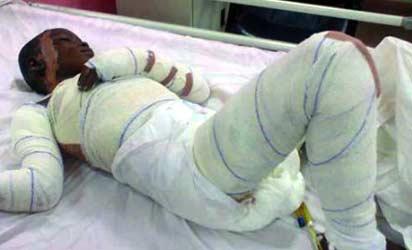 girl burnt alive nurse lagos dead