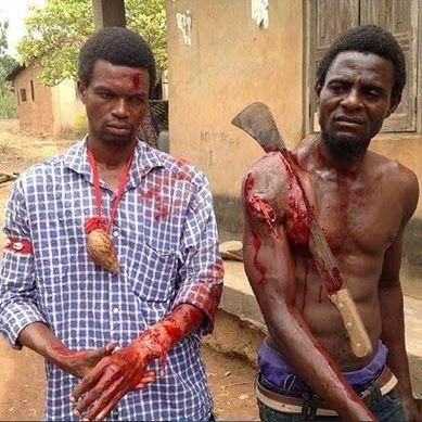 Horrible! Cutlass Sinks Deep into Man's Shoulders as His 'Juju' Fails to Protect Him (Graphic Photo)