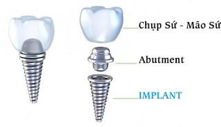Những thông tin cơ bản về ghép implant nha khoa 2