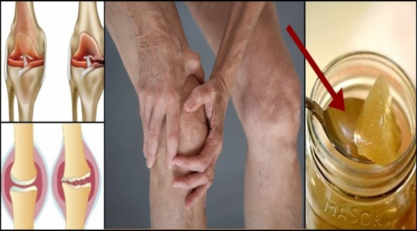 The Root Of The Knee Pain Is A Damage Of The Cartilage, So This Is How To Naturally Regenerate It