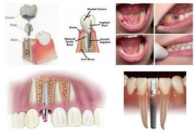 https://2.bp.blogspot.com/-_bWHkmn3B_k/W9lzG7-KnqI/AAAAAAAAAbU/H7CXexvlqtoyTpIbnIduYq3CX6j-FMEgwCLcBGAs/s400/implant.jpg