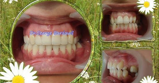 Orthodontic cases Treated By Dr.George Bardawil