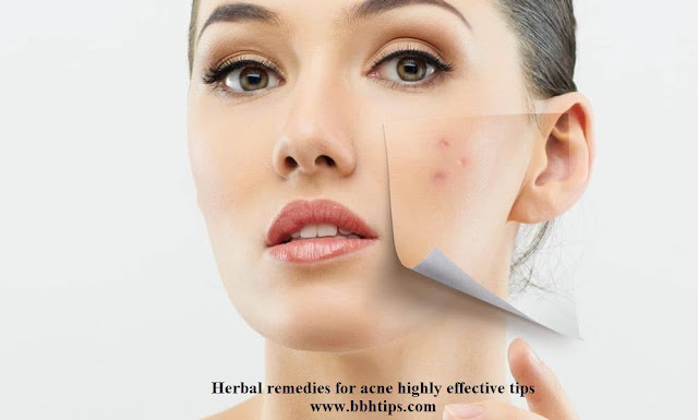 Herbal remedies acne highly effective tips