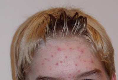 Hampir kebanyakan perempuan di dunia ini niscaya ingin mempunyai penampilan wajah yang anggun d Cara Memudarkan Bekas Jerawat Membandel Menggunakan Bengkoang