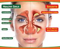 Obat Penyakit Sinusitis Yang Aman