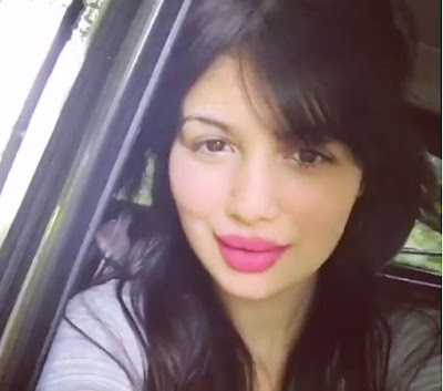 Ayesha Takia lip surgery latest photo