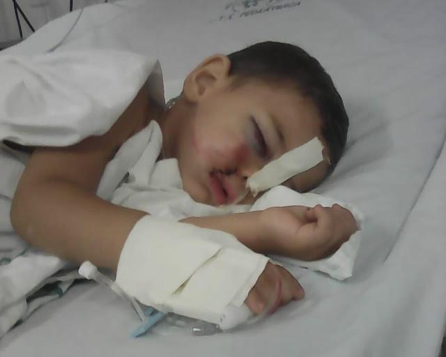 Garoto de 2 anos, apaixonado por vaquejada, sofre coice e pede ajuda para sobreviver